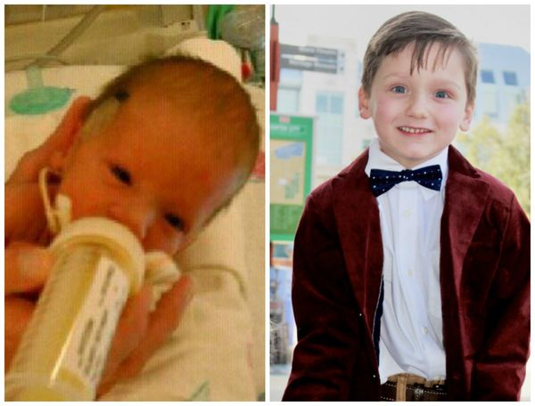 Eli was born June 25, 2011, at 34 weeks because of preeclampsia complications. He weighed 4 pounds and 8 ounces. He fought ha