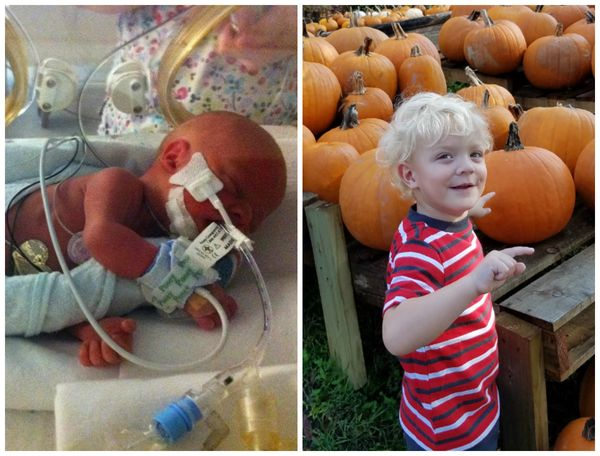 My son, Blake, was born on Oct. 18, 2014. He was born nine weeks early. He weighed 3 pounds, 1 ounce, and was 14.5 inche