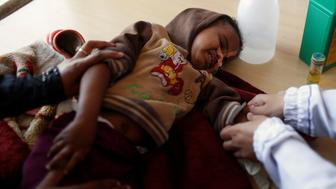 A boy is being treated at a malnutrition treatment center in Sanaa, Yemen November 4, 2017. REUTERS/Khaled Abdullah