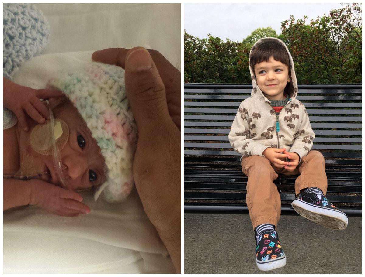 Bebês prematuros antes e depois: Fotos mostram capacidade de recuperação destes