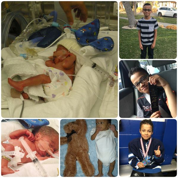 This is my son, Taylor. He was born at 27 weeks weighing 1 pound, 12 ounces. I was extremely sick with HELLP syndrome. We wer