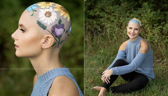 Una joven con alopecia celebra su calvicie con una sesión de
