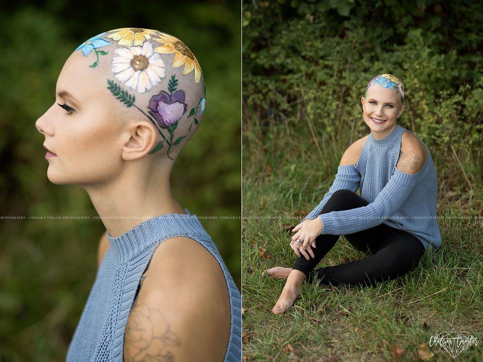 ¡No soy una melena! Esta joven embellece su alopecia y se