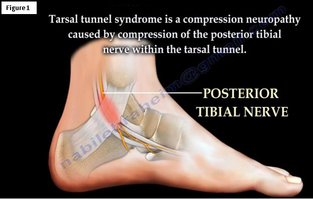 Tarsal Tunnel Syndrome A Carpal Tunnel Like Syndrome Of The Foot