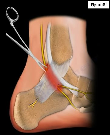 Tarsal Tunnel Syndrome- A Carpal Tunnel-like Syndrome of the