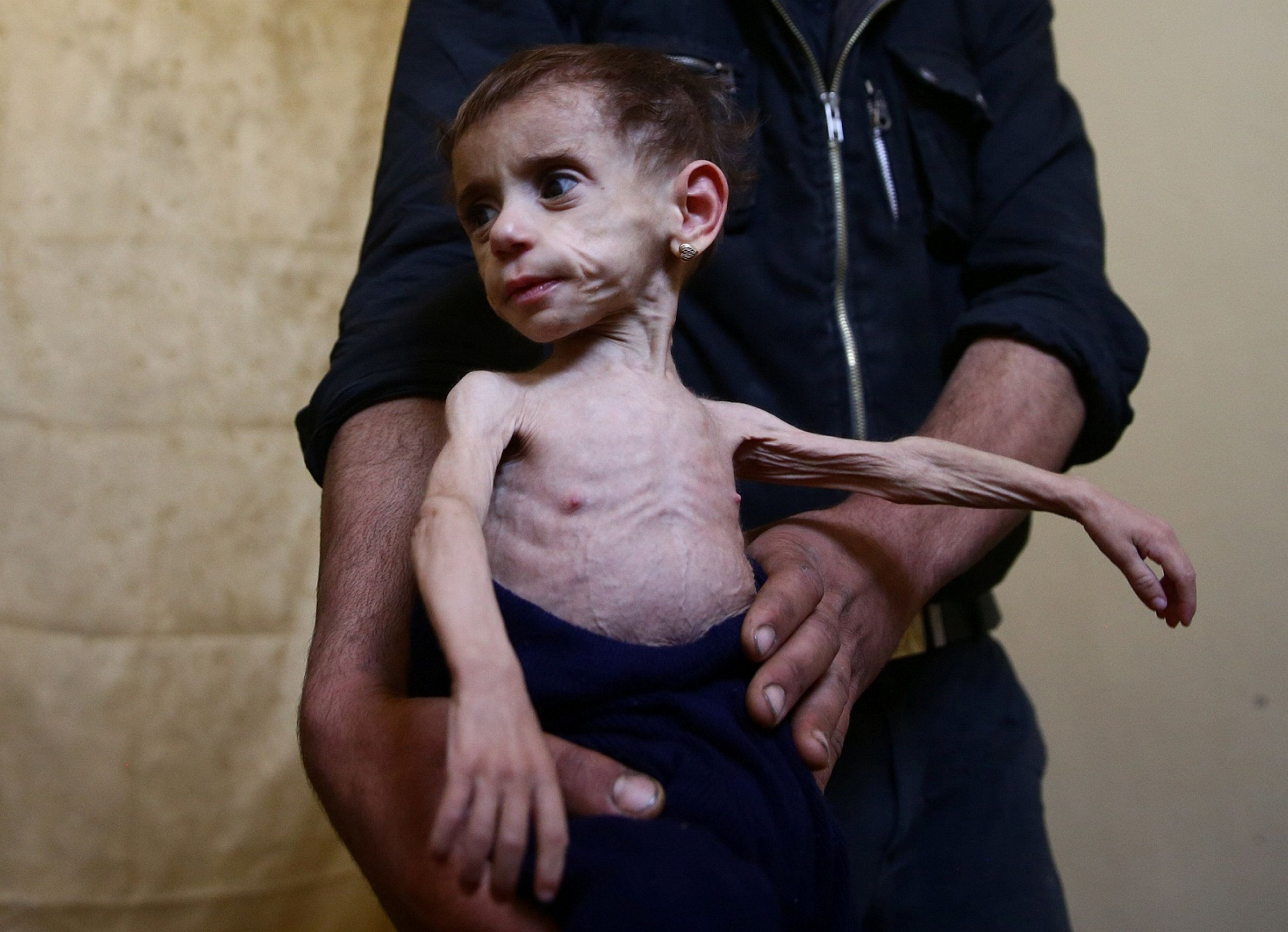 "Two-and-a-half year old Hala al-Nufi, who suffers from a metabolic disorder which is worsening due to the siege and food shortages in the eastern Ghouta, is held by her uncle in the eastern Damascus suburb of Ghouta, Syria, October 25, 2017. REUTERS/Bassam Khabieh  SEARCH ""KHABIEH MALNUTRITION"" FOR THIS STORY. SEARCH ""WIDER IMAGE"" FOR ALL STORIES."