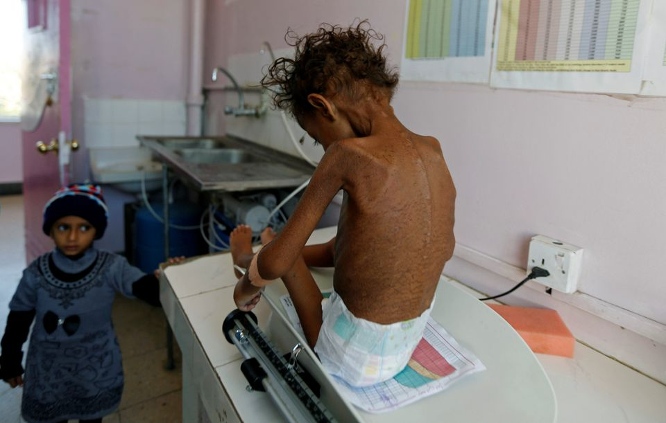 A five-year-old girl sits on a scale at a malnutrition treatment center in Sanaa, Yemen, on Nov. 22,