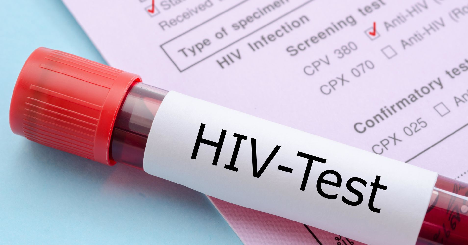 New hiv cases in new york city hit record low health - Test hiv periodo finestra 2015 ...