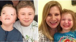 What Parents Of Children With Facial Differences Want You To Tell Your