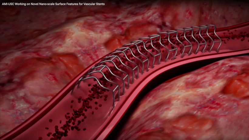 Nano-scale surface features for vascular stents