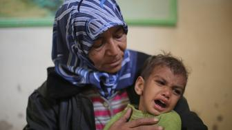 DAMASCUS, SYRIA - NOVEMBER 12: Um Mohammed (L) holds Hamza (R) in the Eastern Ghouta region of Damascus in Syria on November 12, 2017. Amount of children catching diseases, due to lack of medicines, increase day by day in East Ghouta, a region under a blockade by Assad Regime. Three years old Hamza lost his abilities to walk and speak as he caught diseases growing worse due to lack of medicine and food. 55 years old mother Um Mohammed, living alone, lost a son two years ago. Nowadays, she is trying to fill the gap with Hamza. (Photo by Anas Aldimashqi/Anadolu Agency/Getty Images)