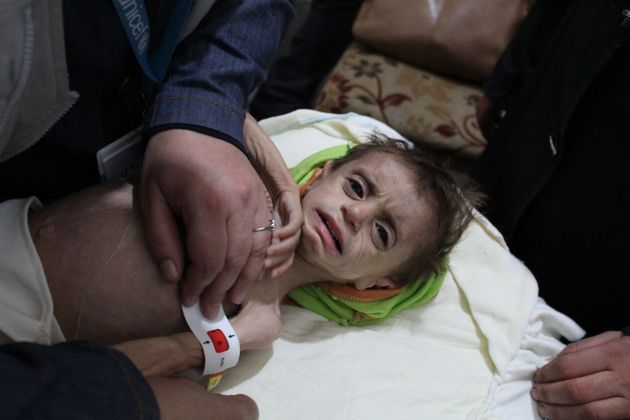 A severely malnourished child pictured in October at the Al Kahef hospital in Kafr Batna, east Ghouta,