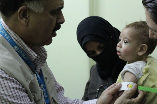 UNICEF Nutrition Officer, Mohammad Younus, screens a child for malnutrition at Al Kahef hospital in Kafr