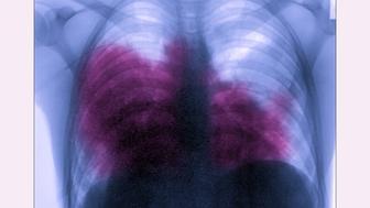 Acute bilateral pneumonia (legionnairesÕ disease caused by Legionella pneumophila), seen on a frontal chest x-ray. (Photo by: BSIP/UIG via Getty Images)