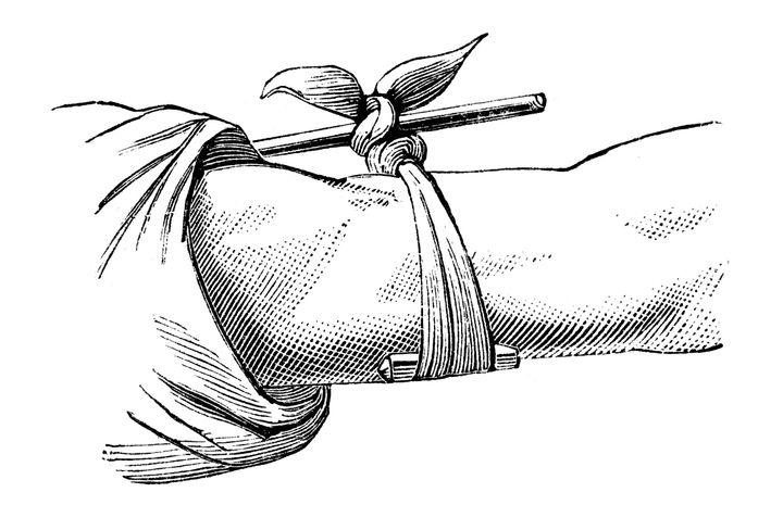A Victorian-era etching of a tourniquet.