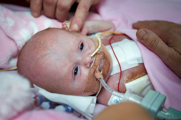 Bei diesem Baby schlug das Herz außerhalb des Körpers - die Ärzte hatten die Hoffnung schon aufgegeben