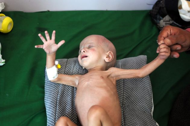 Millions of people in Yemen are on the brink of starvation. Pictured: A malnourished baby receives hospital