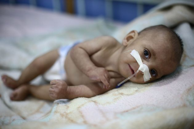A nine-month old baby suffering malnutrition in Eastern Ghouta,