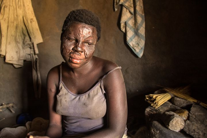 Abalo Vicky, 21, fell into a fire during a nodding syndrome seizure last year and was badly burned.