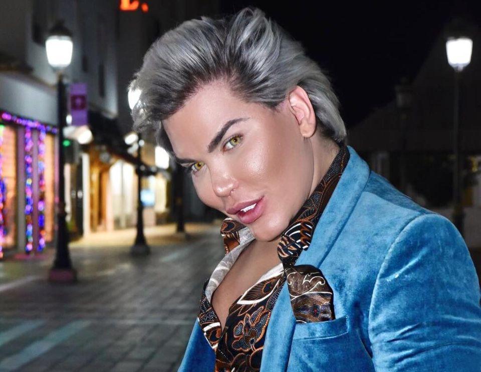 Rodrigo Alves will wie Ken aussehen – jetzt steht seine bisher gefährlichste OP