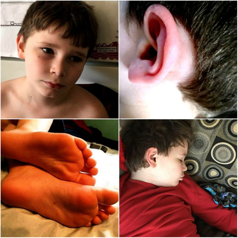 photo split into 4 parts: james looking sad, his ear, red with pain, his feet, red, and him sleeping