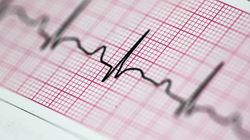 Starting Period Early 'Linked To Higher Heart Disease Risk In Later