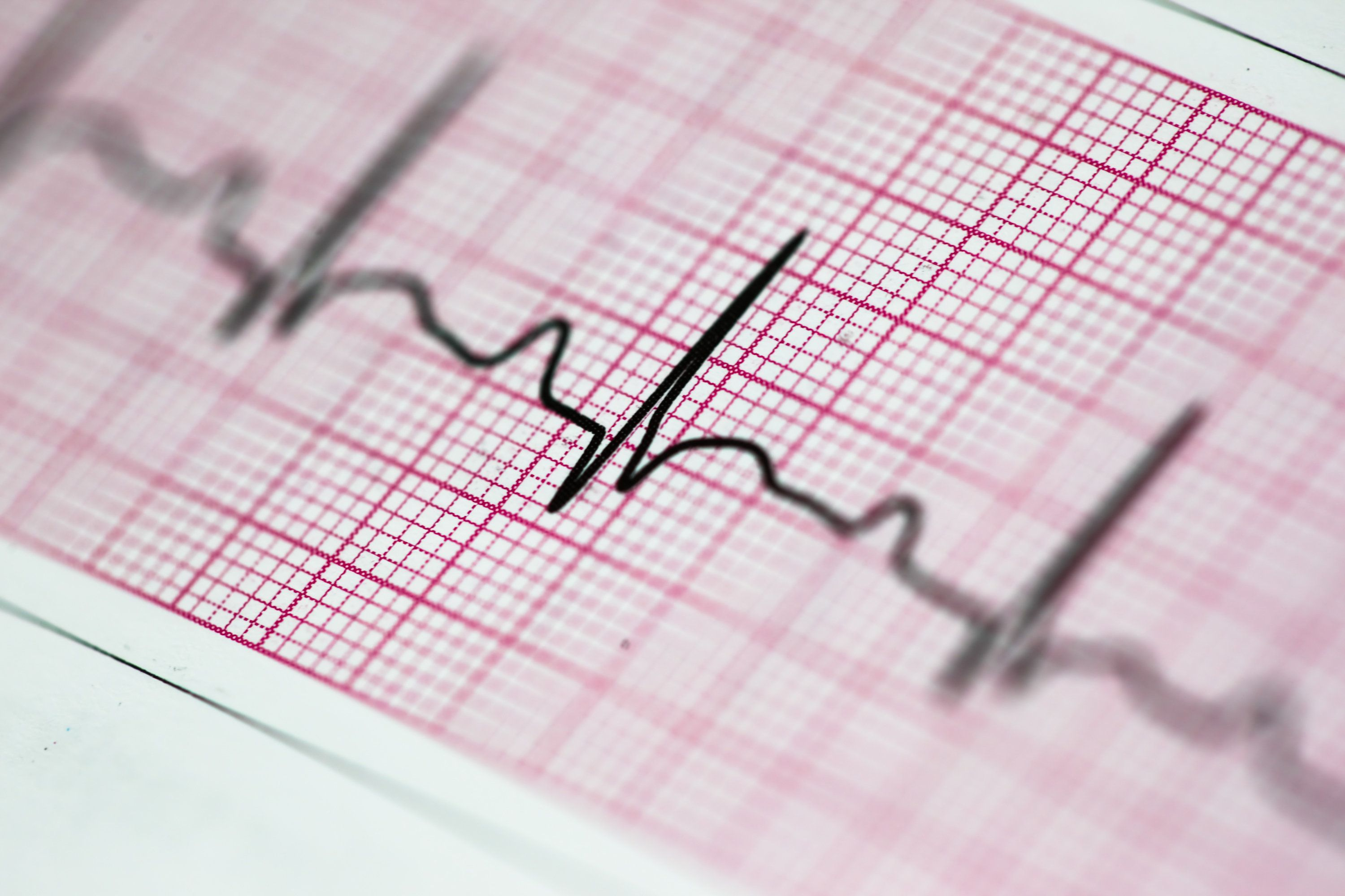 Earlier periods linked to higher risk for heart disease, stroke