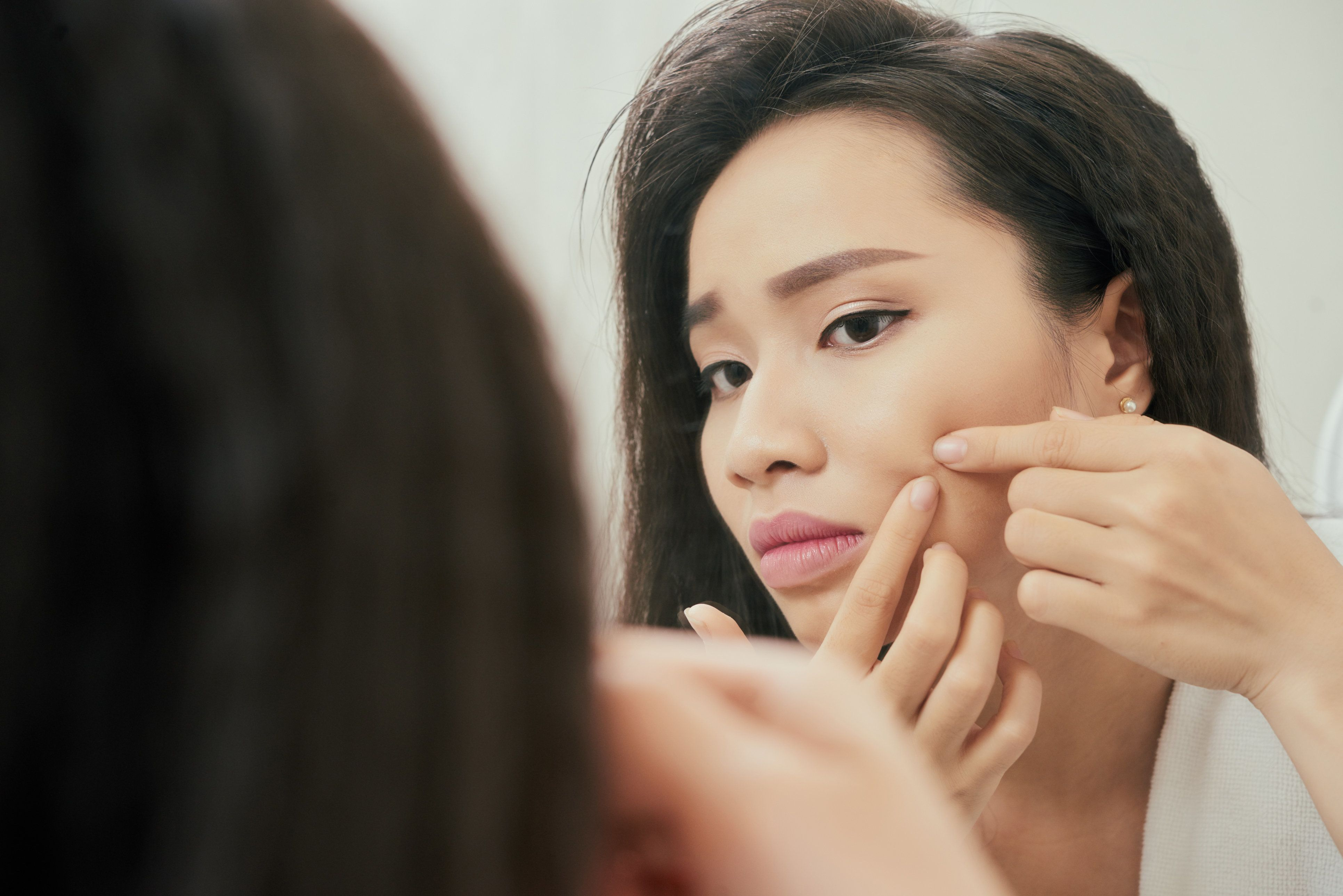 The Best Way To Pop A Pimple Safely, According To