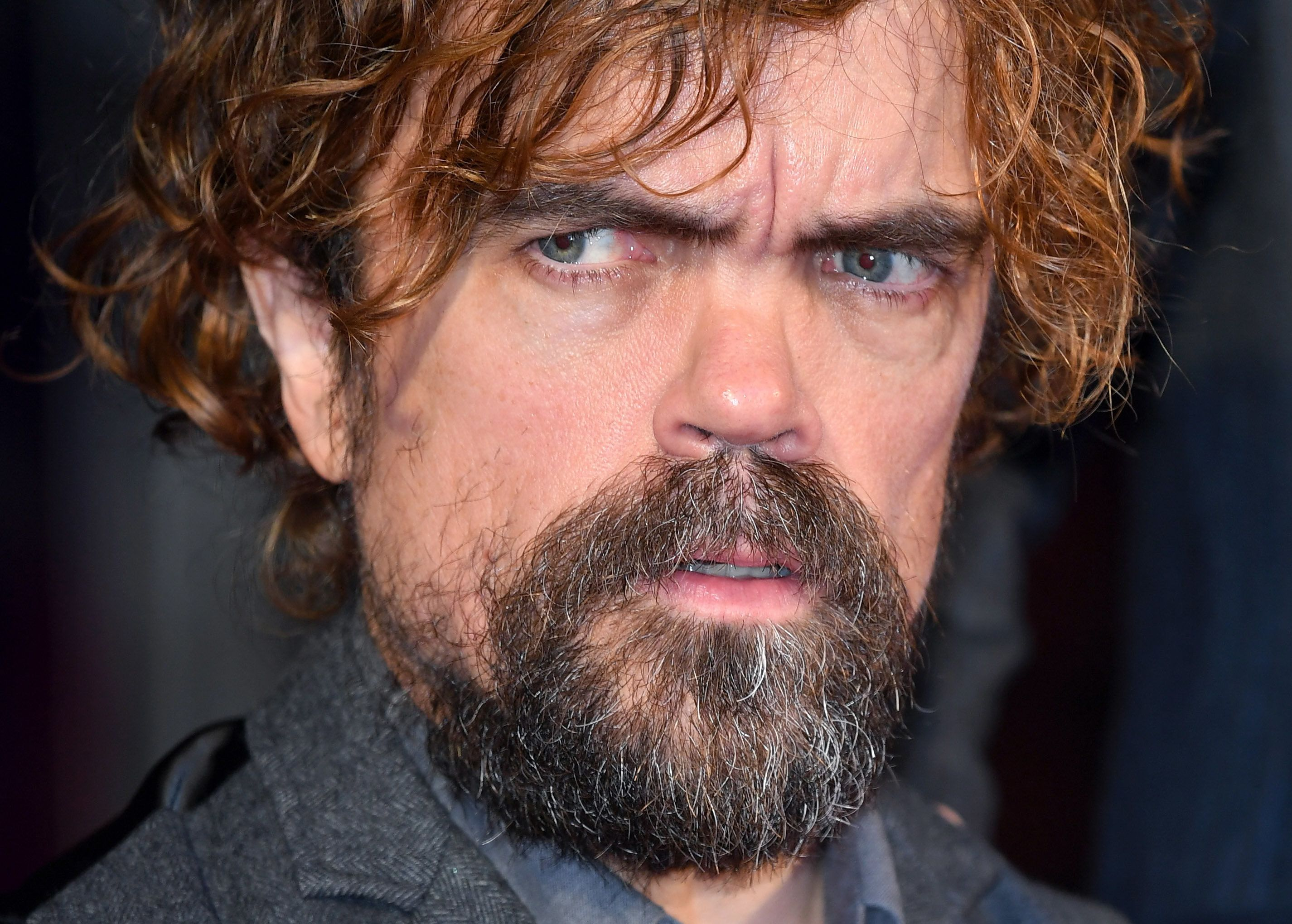 Peter Dinklage Is Ready For 'Game Of Thrones' To End