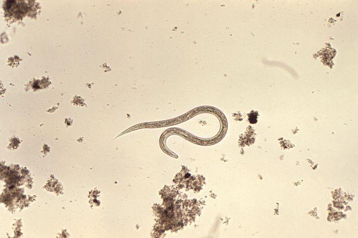 A hookworm parasite.