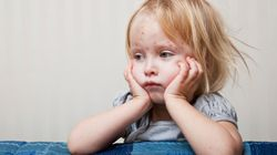 EXPLAINED: Measles Symptoms And Treatment After 'Large Outbreaks' Reported In