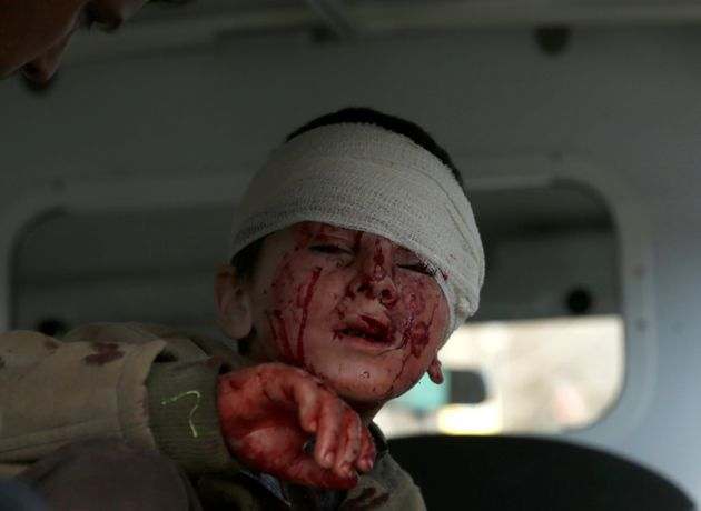 An injured boy sits in an ambulance afterthe