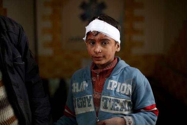 Ο ΟΗΕ ζητεί την παύση των εχθροπραξιών στη Συρία γιατί η κατάσταση είναι