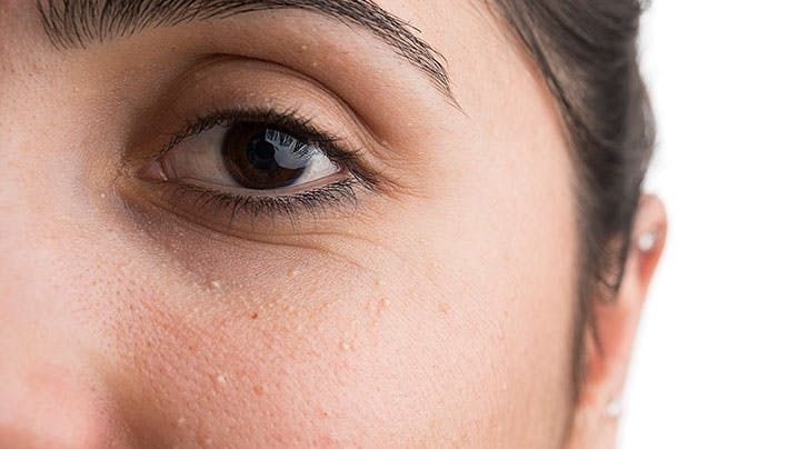 What's The Deal With Those Small White Bumps On Your Face? | HuffPost Life