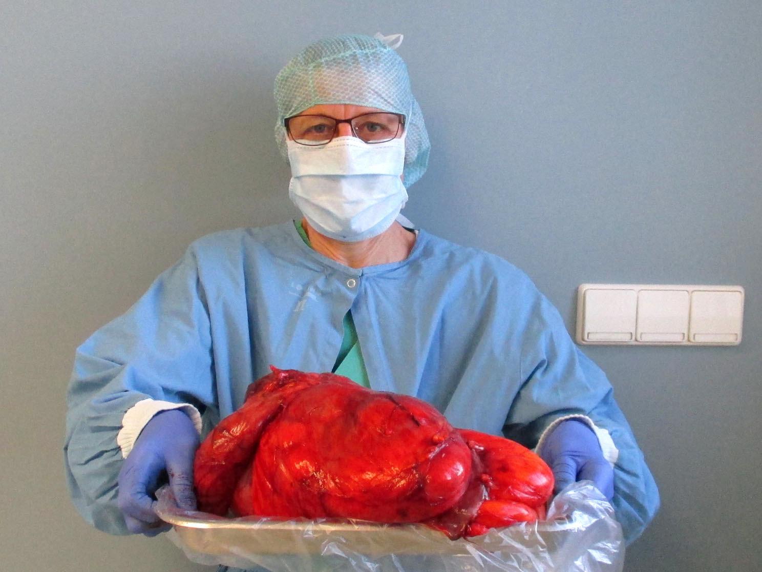 Ravensburg: Frau dachte, sie hätte Blähungen – aber es war rießiger Tumor