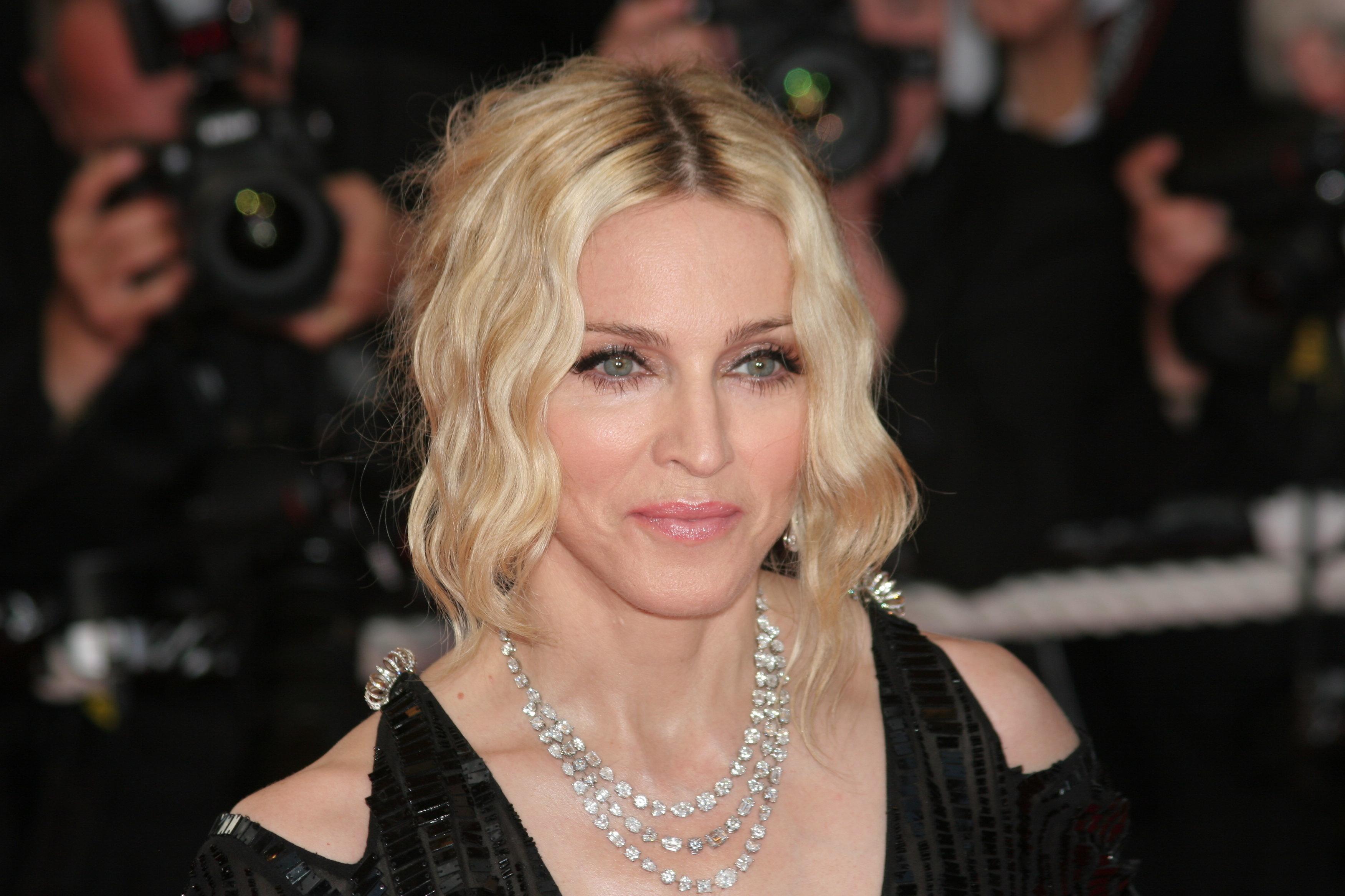 Madonna postet Video nach Schönheits-Behandlung – ihre Fans flippen aus