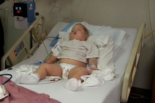 Abbygail Chance, 2, suffered from an irregular heartbeat and sleep apnea, conditions that made her a high-risk patient for a