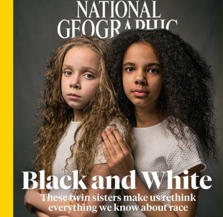 Οι διαφορετικές δίδυμες: Το εξώφυλλο του National Geographic ενάντια στον επιστημονικό