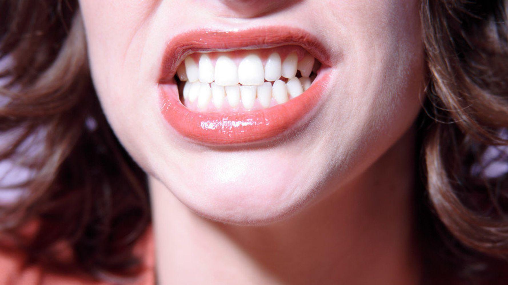 фото зубы во весь рот один