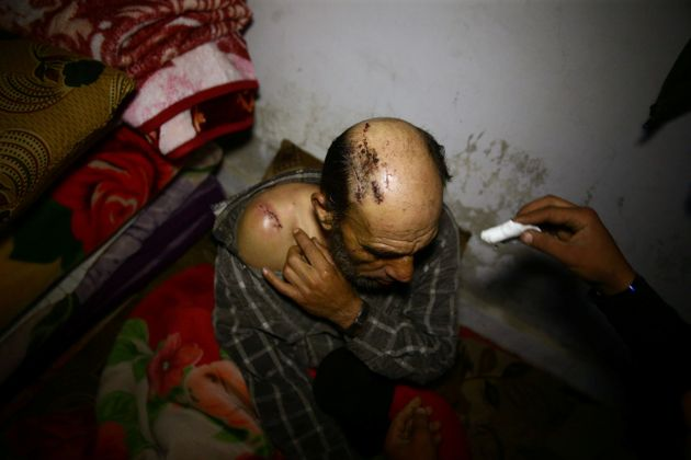 A wounded man in a shelter in Douma, Syria, on March 11,