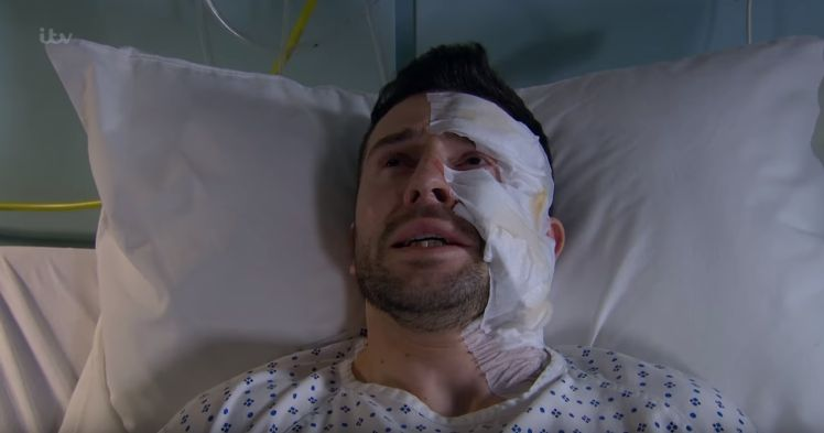 Ross Barton has been left scarred following an acid attack in