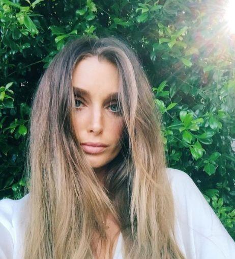 Model braucht nach Urlaub ein neues Herz – jetzt hat sie eine wichtige Botschaft an uns