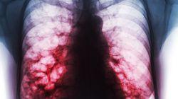 OMS: la tuberculose reste la principale cause infectieuse de mortalité dans le