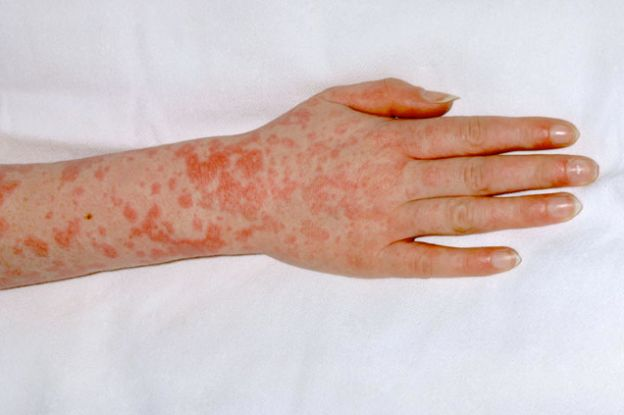 Scarlet Fever Signs And Symptoms In Children After Cases Hit 50-Year High In