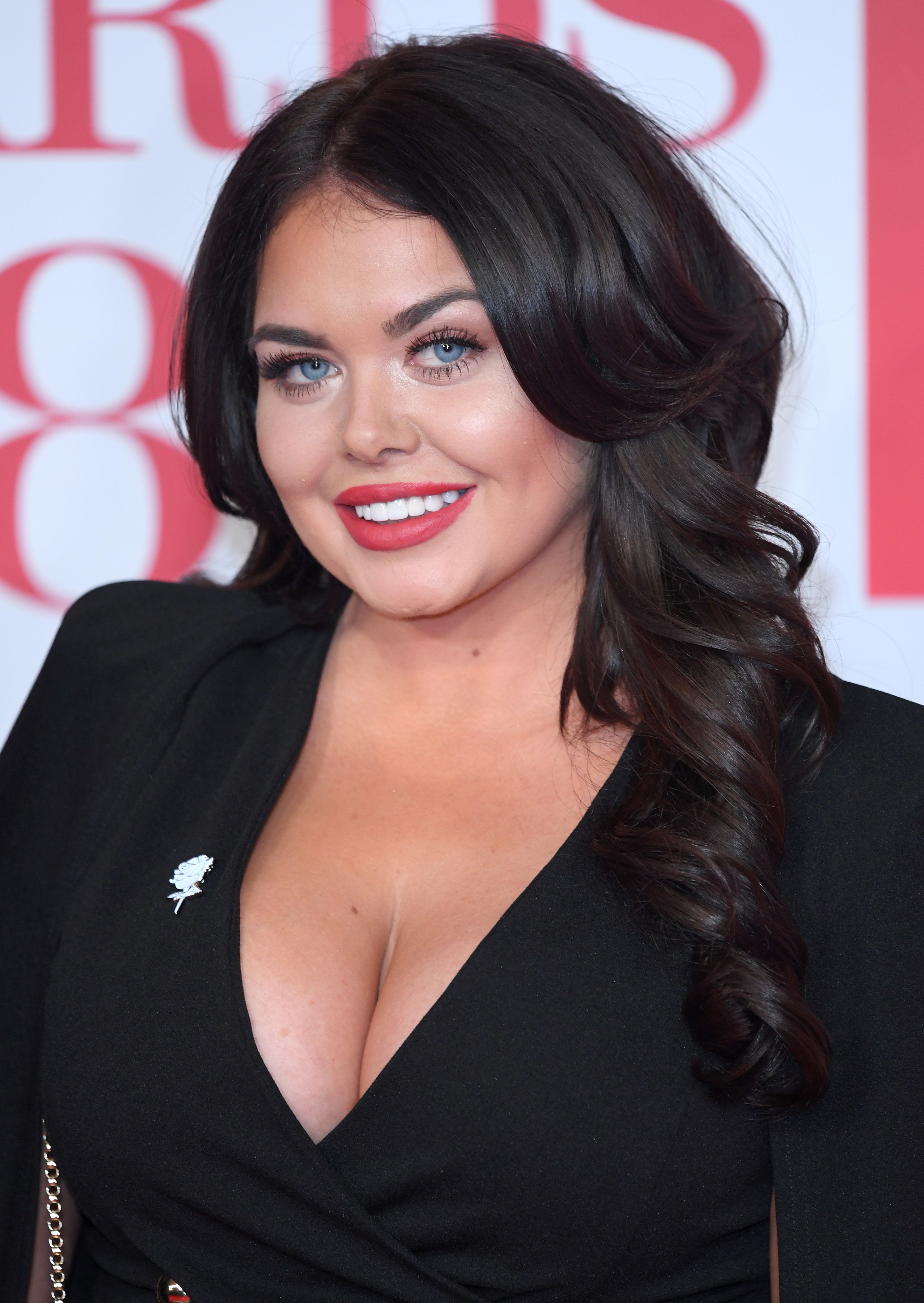 Scarlett Moffatt Hits Back At Media's Fascination With Her 'Changing Face'