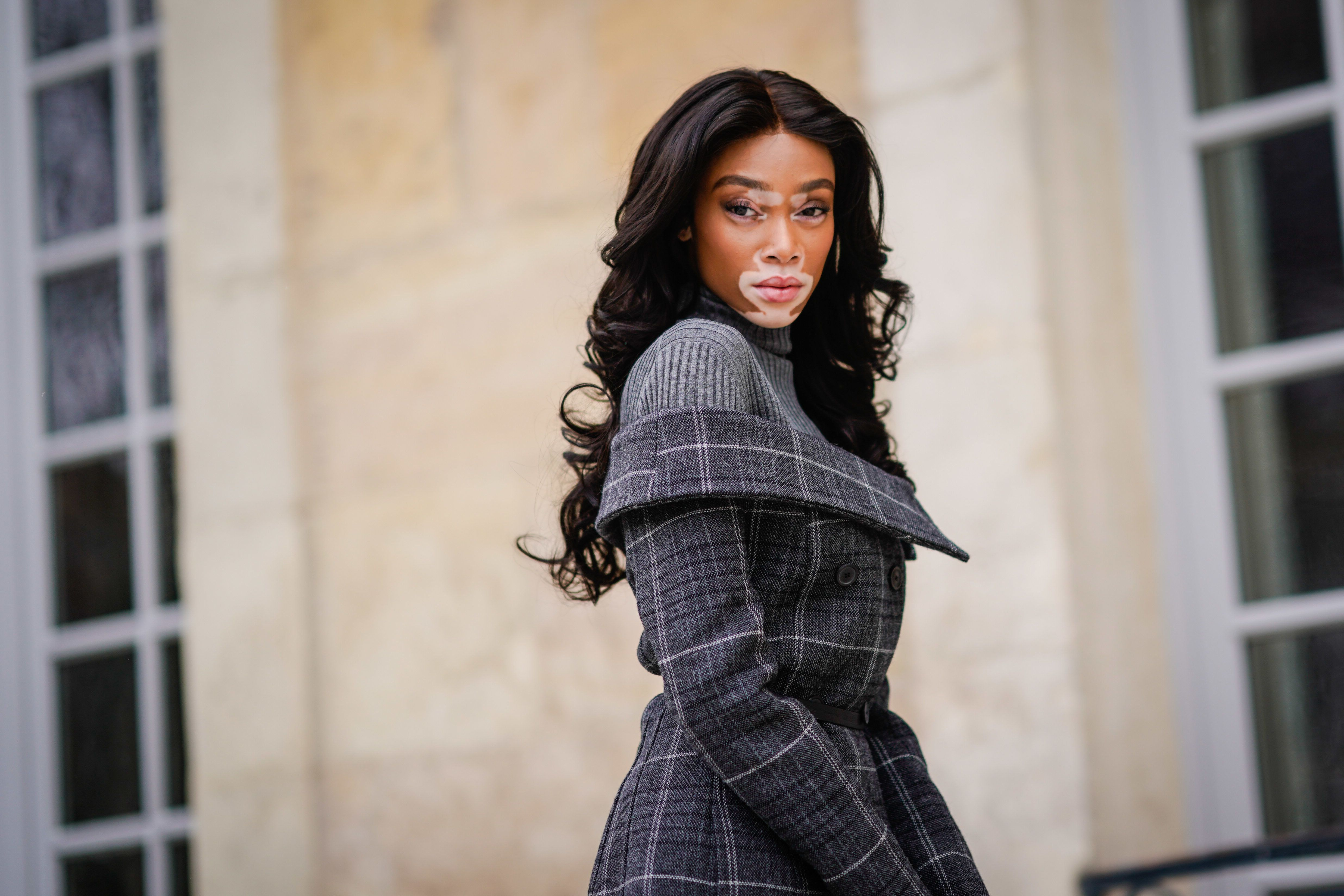 Winnie Harlow poses during Paris Fashion Week on Feb. 27, 2018.