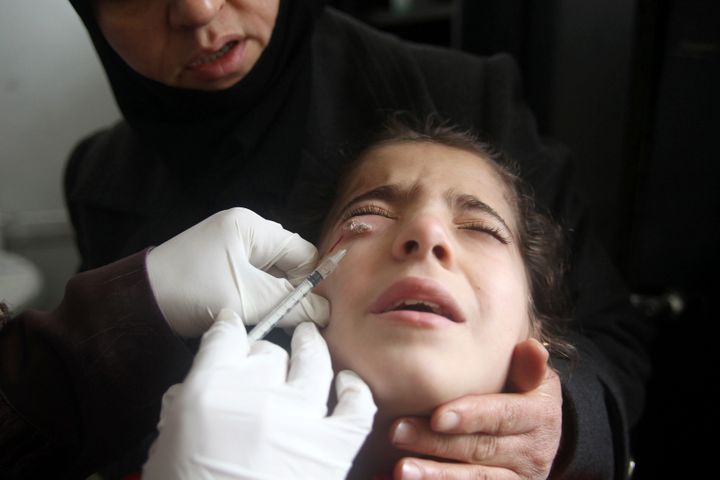 A doctor treats a child showing symptoms of leishmaniasis at a hospital in Aleppo, Syria, on Feb. 11, 2013