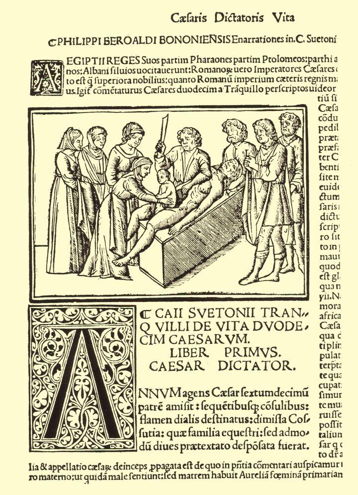 A 16th-century image&nbsp;depicting the legend of Caesar's birth, printed in&nbsp;Filippion Beroaldo's edition of&nbsp;Suetonius'&nbsp;<i>Lives of the Twelve Caesars.</i>
