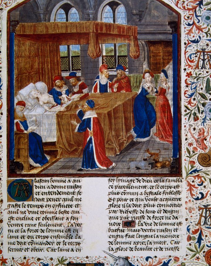An image of a C-section birth in the medieval&nbsp;work&nbsp;<i>Faits des Romains</i>&nbsp;(Acts of the Romans), which chronicles the life of Julius Caesar.