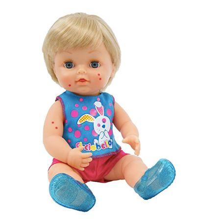 Wirbel um Masern-Puppe in Italien